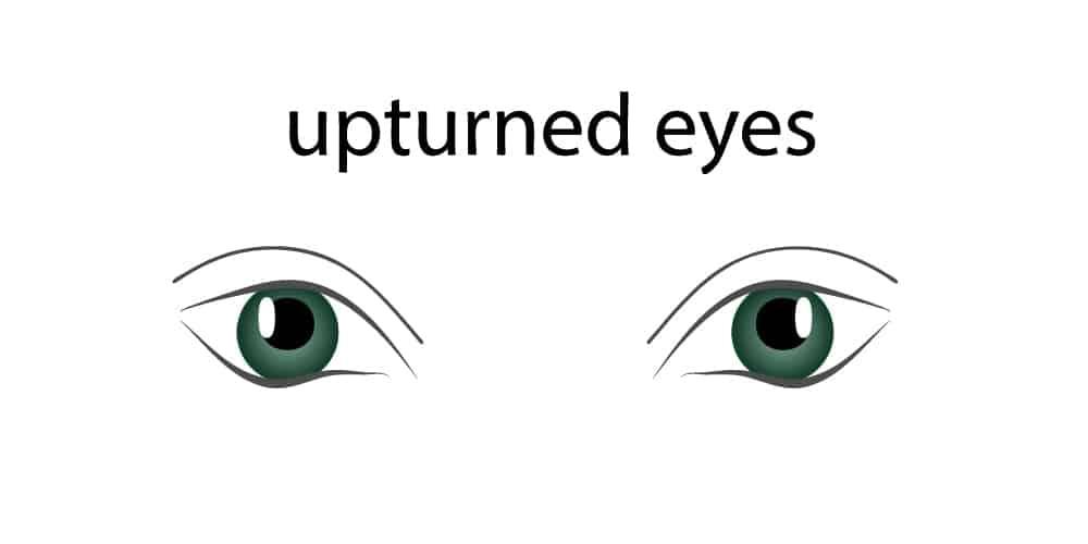 Upturned Eyes