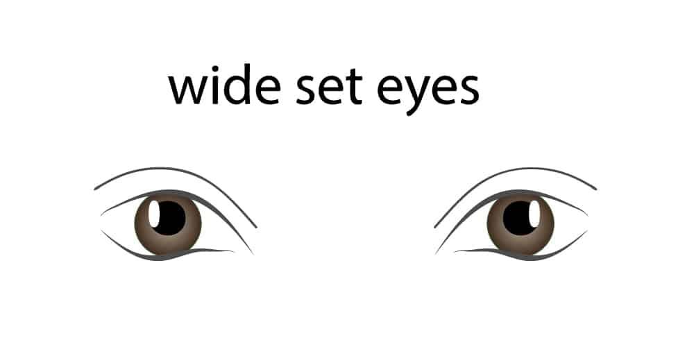 Wideset Eyes
