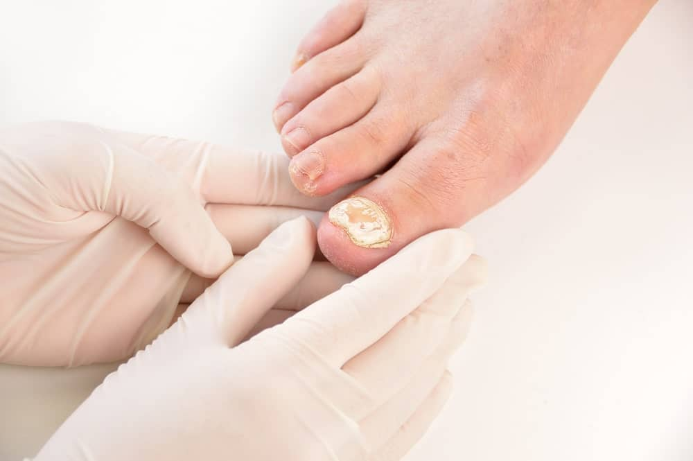 A healthcare professional inspecting a foot with toenail fungus.