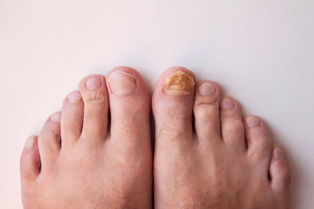 A comparison between healthy toenail and toenail with fungus.