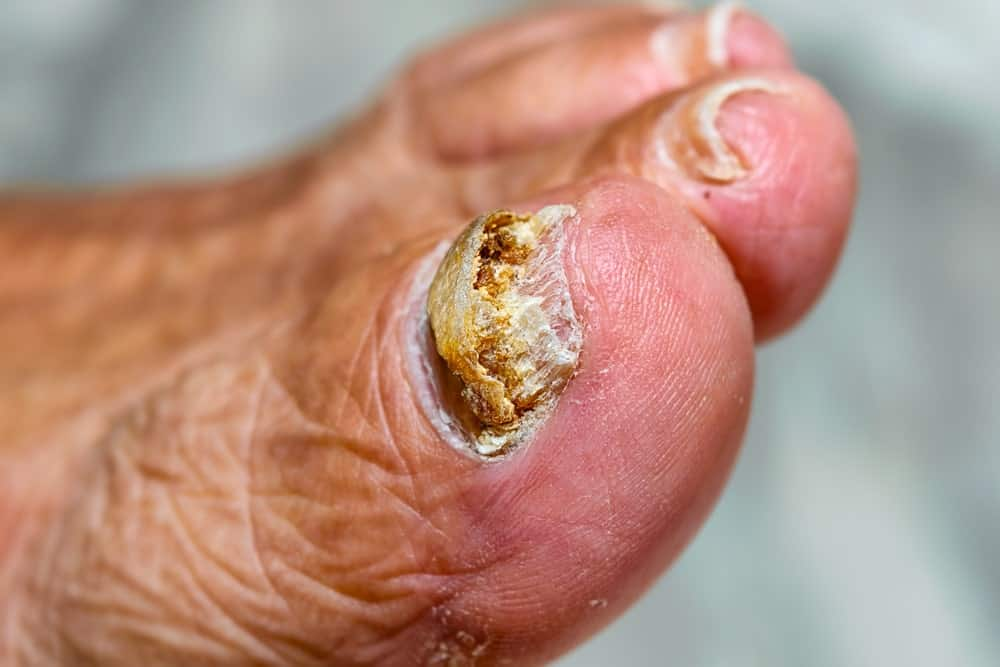 A toenail infected with fungus.