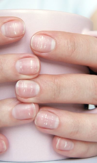 A close look at a woman's hands featuring fingernails with white spots.